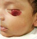 Детская гемангиома на нижнем веке 1 этап