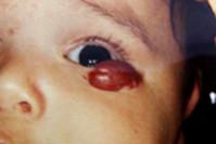Детская гемангиома на нижнем веке 2 этап