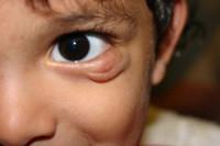 Детская гемангиома на нижнем веке 3 этап